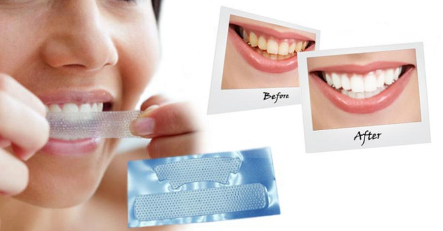 Полоски для отбеливания зубов — как это работает?