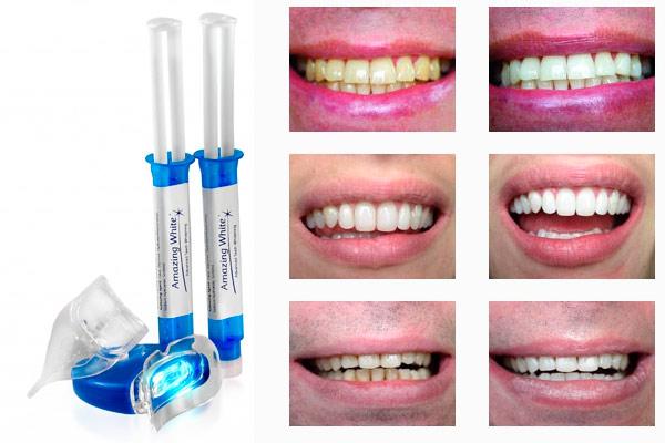 Отбеливание зубов Amazing White - Сеть стоматологий Улыбка, Щелково