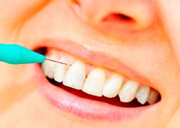Щетки для чистки зубов при кариесе