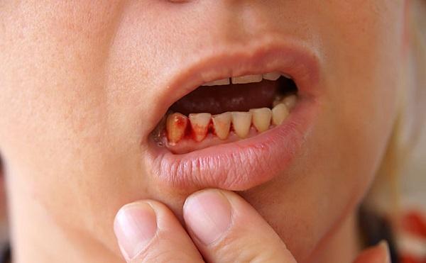 Почему десна кровоточат при чистке зубов