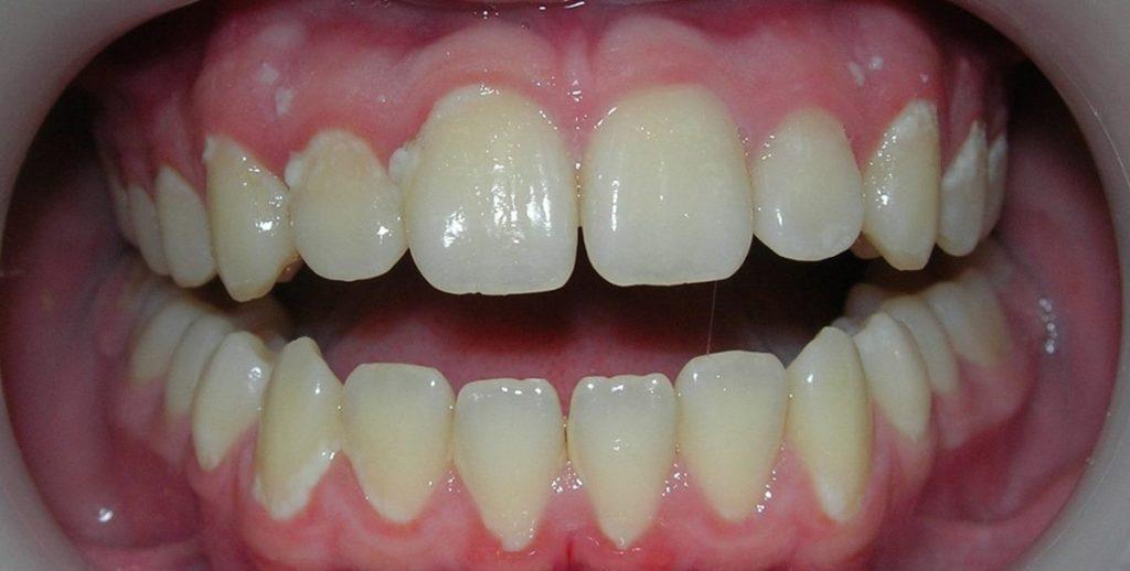 Белый налет на зубах у ребенка: фото, причины, лечение!