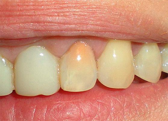 Белый налёт на зубах (в том числе после удаления зуба) у взрослых и детей: причины возникновения, способы устранения и меры профилактики фото