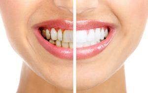 Как убрать черный налет на зубах - 5 эффективных способов!