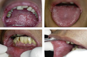 Язык при вич инфекции фото 54